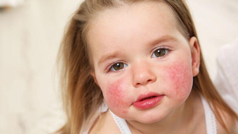 Czy alergię można dziedziczyć?