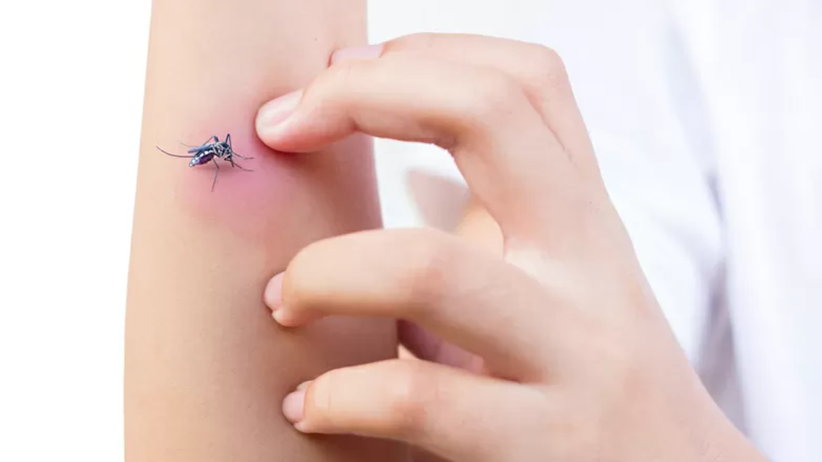 Ukąszenie przez komara może skutkować reakcją alergiczną
