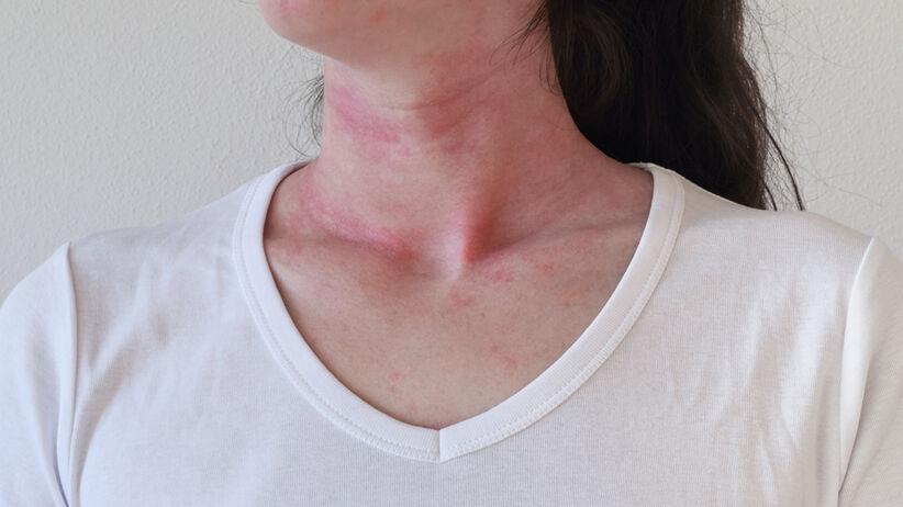 Wstrząs anafilaktyczny po seksie oralnym