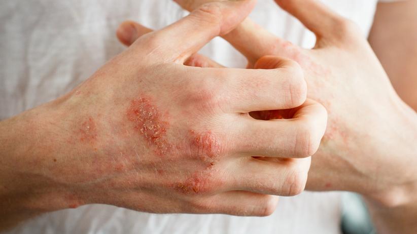 Wyprysk kontaktowy powoduje silne swędzenie skóry