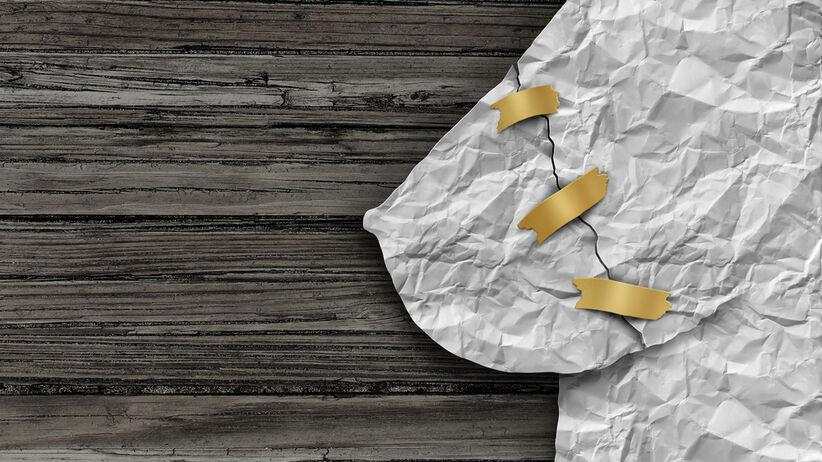 Mastektomia, czyli usunięcie piersi