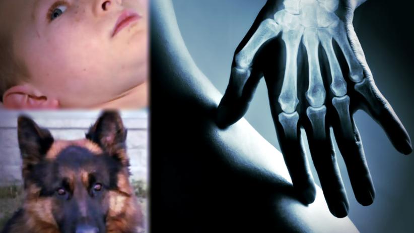 Ręka wszyta w brzuch: lekarze uratowali chłopca pogryzionego przez psa