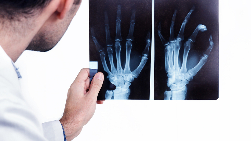 Wady dłoni powstają w pierwszych tygodniach życia