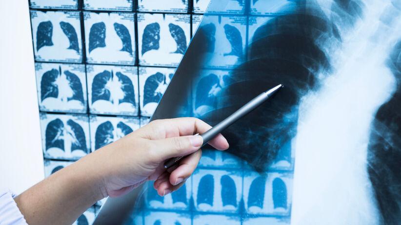 Atypowe zapalenie płuc w COVID-19