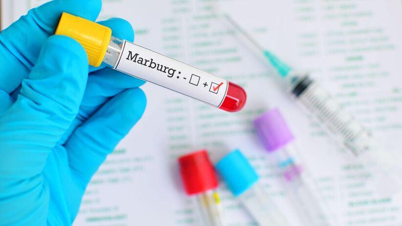Gorączka krwotoczna Marburg