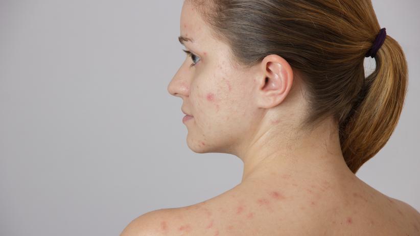 Koronawirus a problemy skórne.