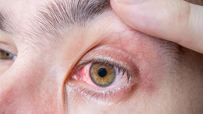 Pasożyt w oku