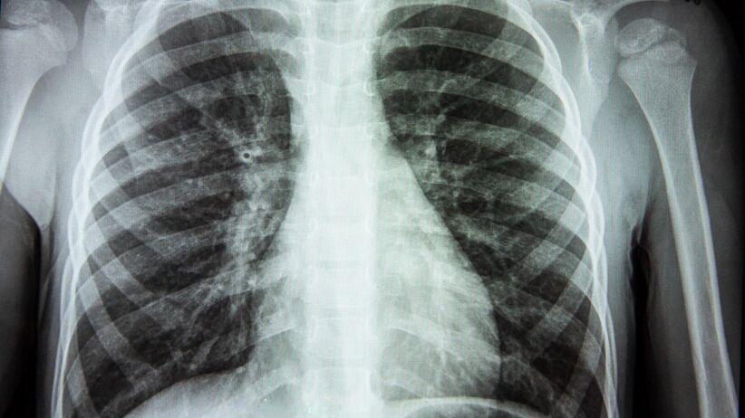 Zmętnienie płuc - stan zapalny