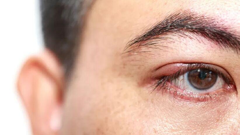 Jęczmień na oku a cukrzyca