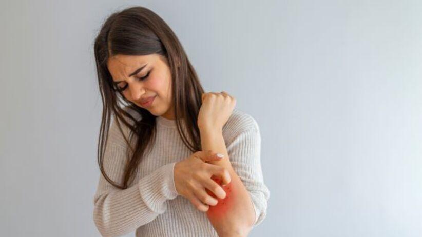 Choroba Morgellonów - świąd skóry