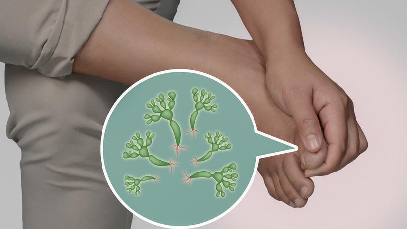 Grzybica stóp jest zaraźliwa, może też rozprzestrzeniać się na inne części ciała
