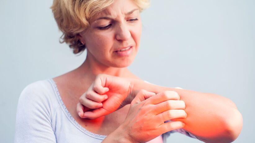 Koronawirus a atopowe zapalenie skóry
