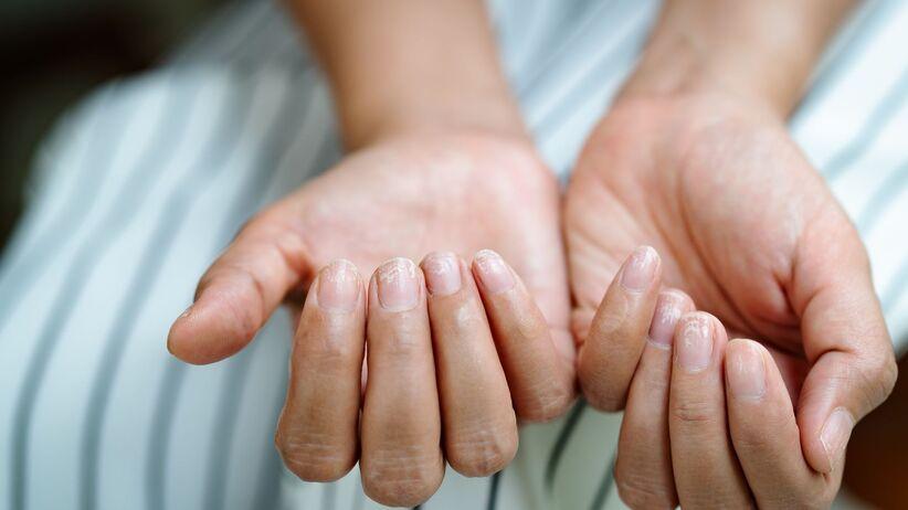 Linie Beau, czyli bruzdy na paznokciach