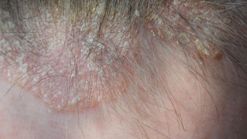 Łuszczyca skóry głowy (zdjęcie)