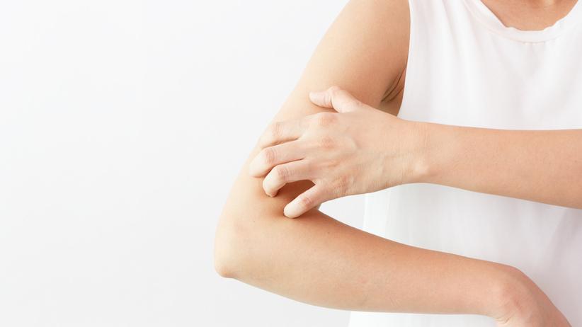 Skóra chorych na AZS reaguje na czynniki zewnętrzne, w tym tkaniny ubraniowe.