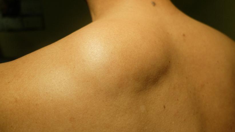 Tłuszczak: łagodny, bezbolesny nowotwór. Co należy wiedzieć o tłuszczakach?