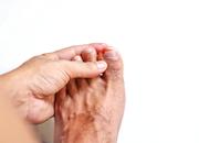 Zanokcica jest częstą konsekwencją wrastania paznokci