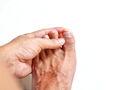 La paroniquia es una consecuencia común de las uñas encarnadas