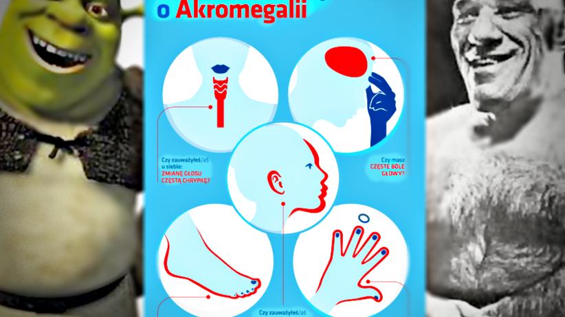 """Akromegalia - tajemnicza """"choroba gigantów"""". Jak ją rozpoznać?"""