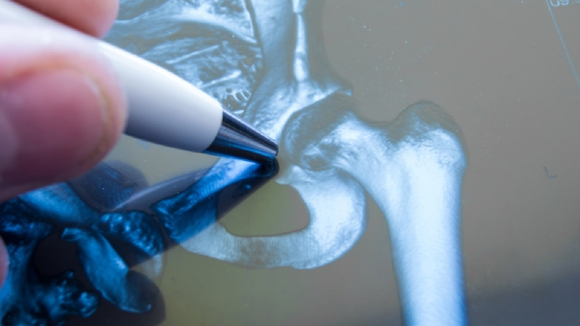 Endoprotezy stawów diagnostyka