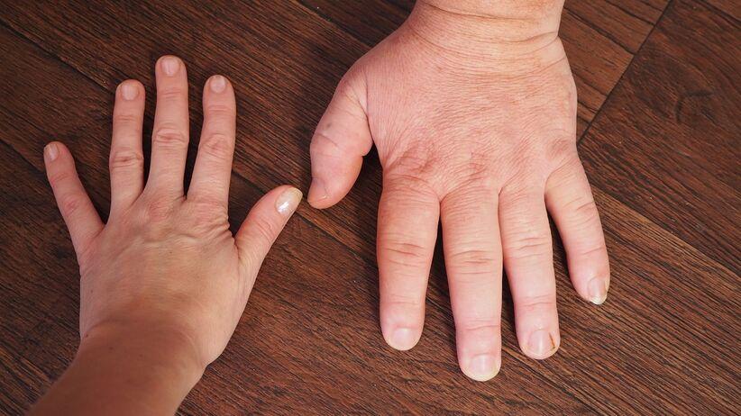 Ręce osoby chorej na akromegalię