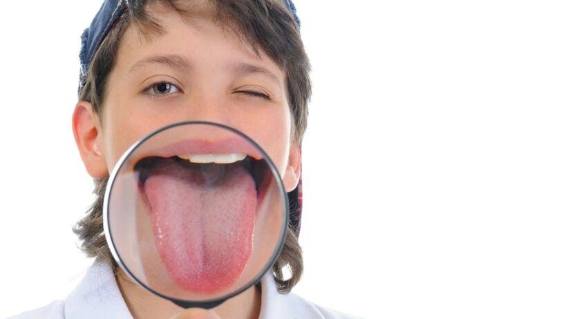 Chłopiec z ogromnym językiem