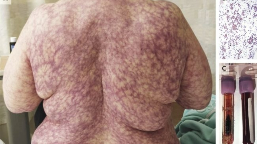 Choroba zimnych aglutynin, czyli rzadka choroba krwi wywołana zimnem