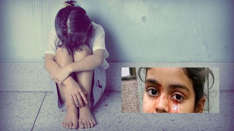 Krwawe łzy