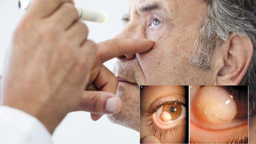 Owłosiona gałka oczna