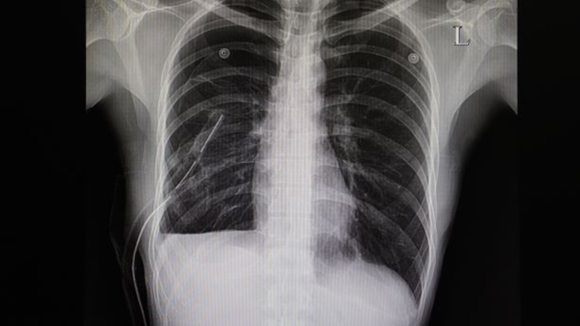 Zapadniete płuco