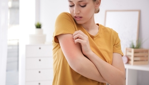 Gdy robi się zimno, doświadcza silnych reakcji alergicznych