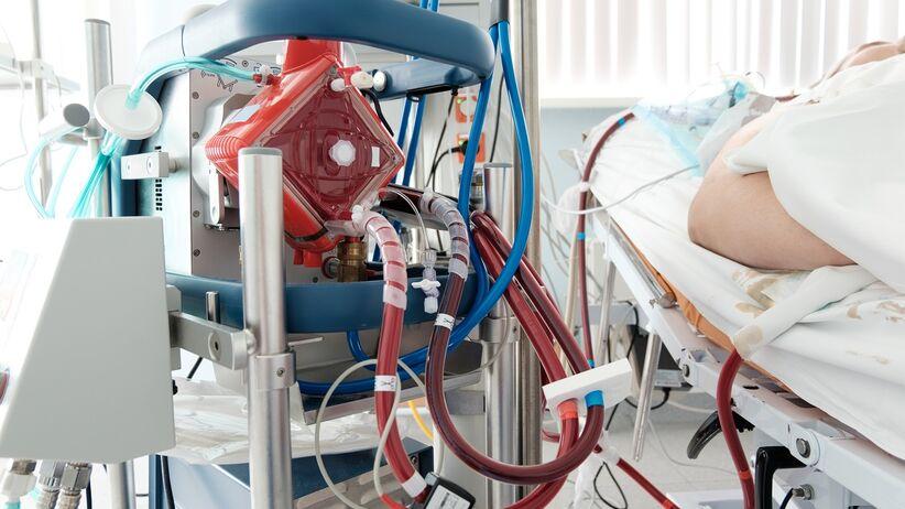 Sztuczne płuco ECMO