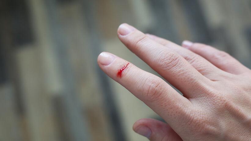 Rana na palcu dłoni