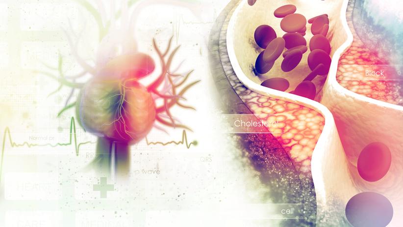 Hipercholesterolemia charakteryzuje się wysokim stężeniem cholesterolu całkowitego i LDL we krwi