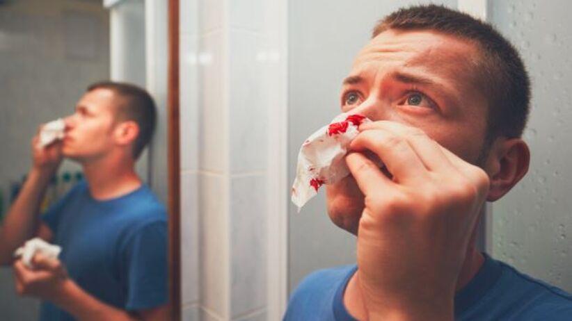 Małopłytkowość - krwawienie z nosa