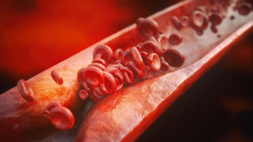 Miażdżyca może prowadzić do zawału i udaru. Jakie są objawy miażdżycy?