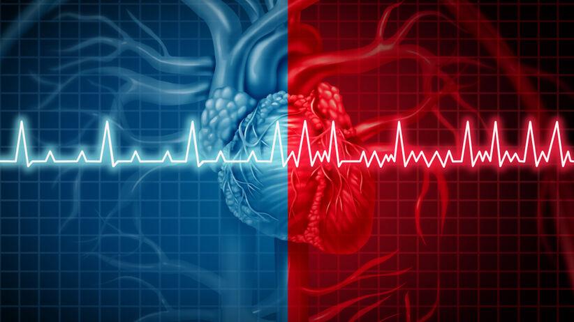 Migotanie przedsionków to występująca najczęsciej arytmia serca
