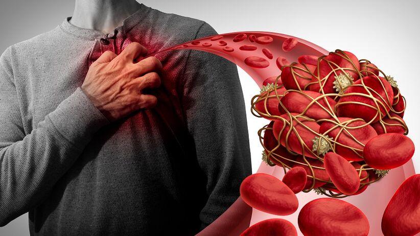 Objawy zakrzepicy - 8 niepokojących sygnałów