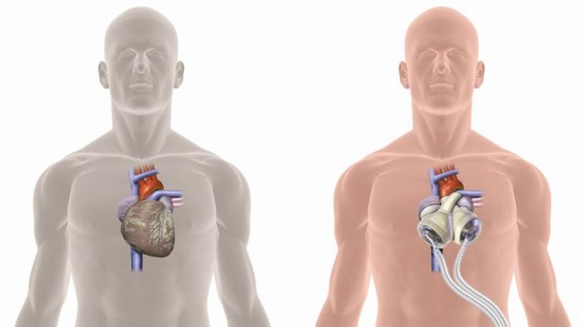 Lekarze z Zabrza wykonali pierwszy w Polsce przeszczep sztucznego serca