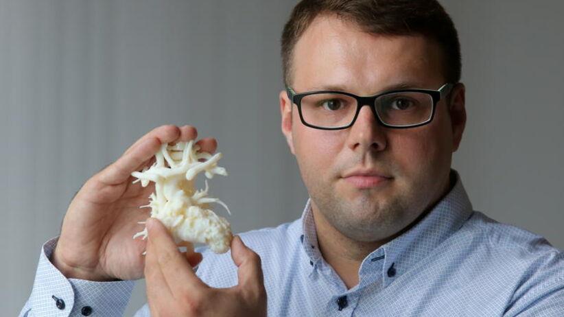 Stworzył serce z drukarki 3D dla syna. Teraz pomoże kolejnemu dziecku