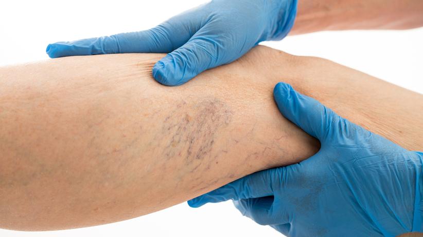 Teleangiektazje to rozszerzone naczynka, które stają się widoczne pod skórą. Nazywane są pajączkami, bo często tworzą gęsto utkaną sieć niebieskich i czerwonych naczynek
