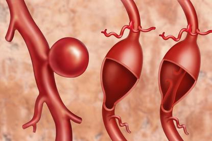 Tętniak powstaje jako wybrzuszenie w ścianie naczynia krwionośnego