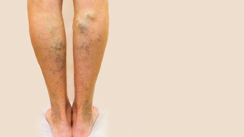 Żylaki nóg to poszerzone i poskręcane żyły, które są widoczne gołym okiem i mają siną lub bardziej fioletową barwę