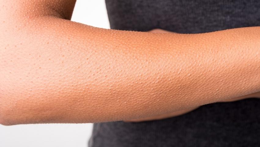 Gęsia skórka - czy to objaw choroby?