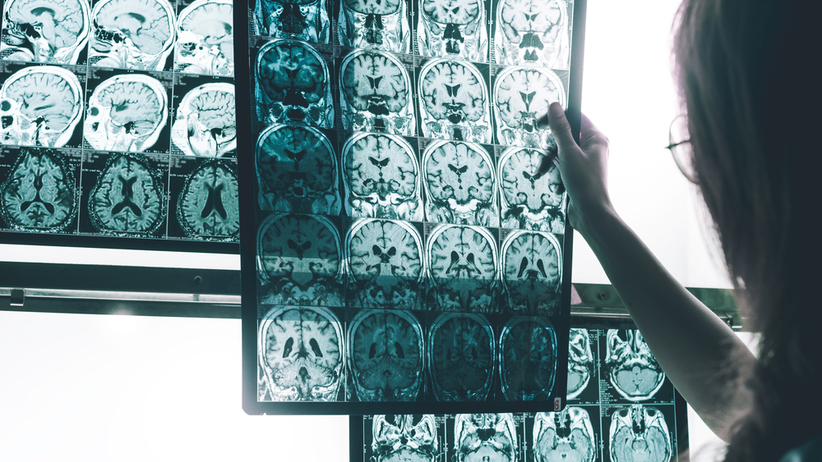 Oksytocyna: jak działa na mózg?