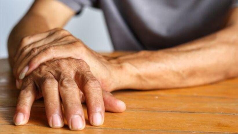 Parkinsonizm