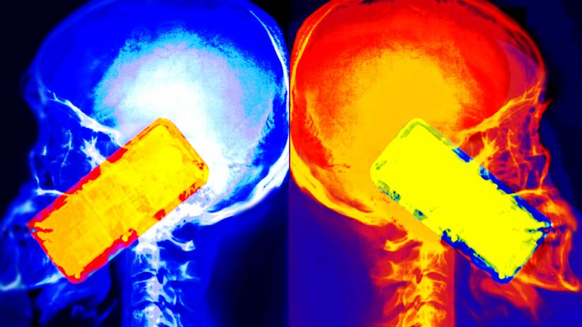 Telefony komórkowe mogą powodować guzy mózgu. Bezprecedensowy wyrok sądu