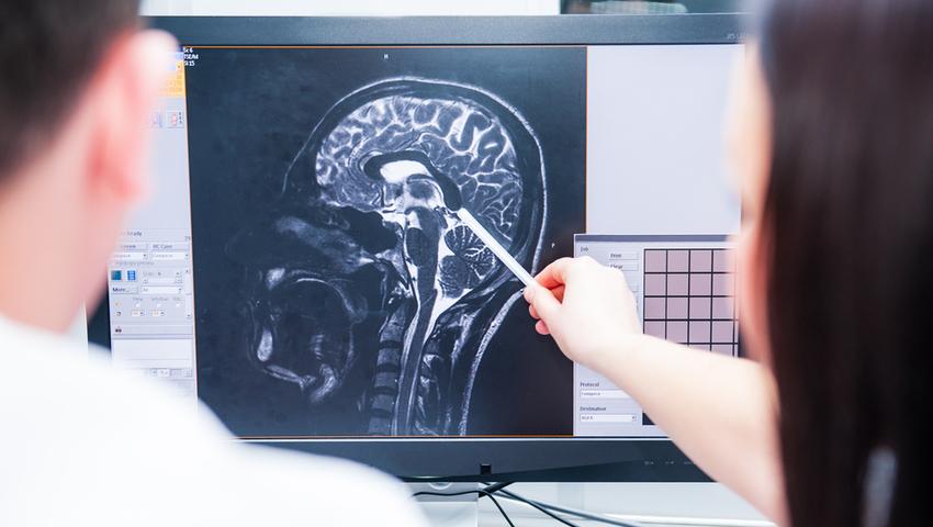 Zmiany patologiczne w mózgu