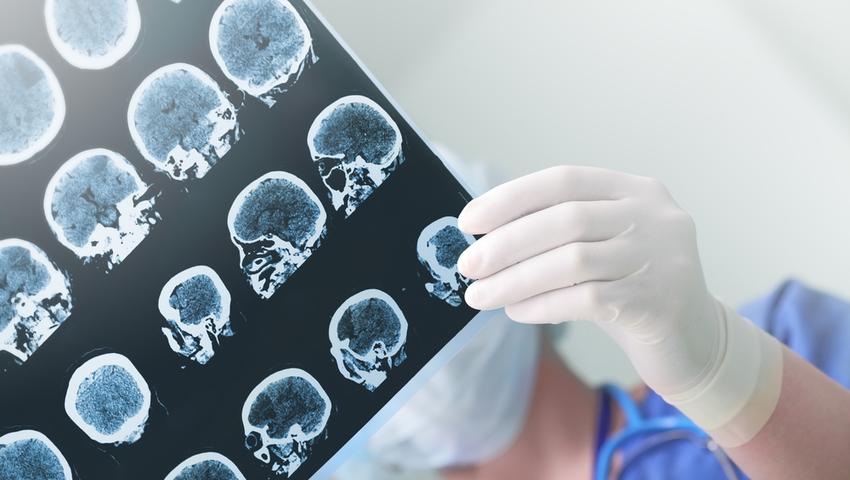 Udar niedokrwienny mózgu moze prowadzić do niedowładu, paraliżu i zaburzeń mowy lub widzenia.