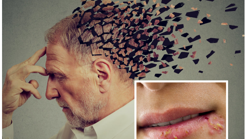 Alzheimer herpeswirusy opryszczka